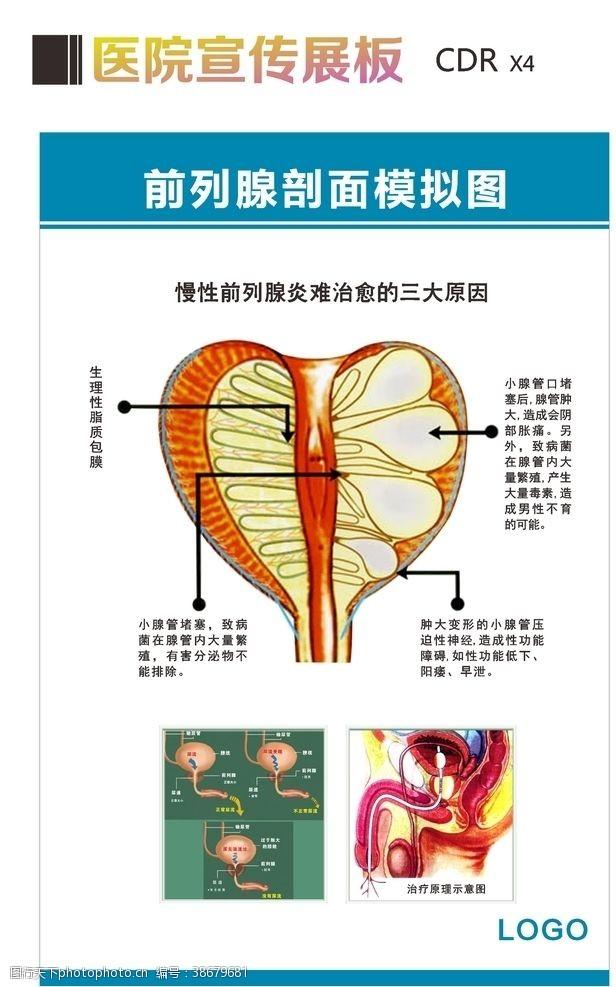 男科杂志前列腺剖面模拟图