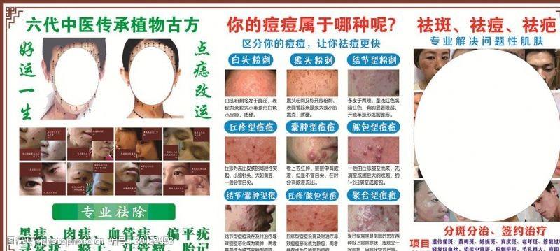 专业祛斑祛痘图片